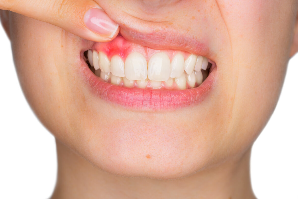Experiencing bleeding gums when brushing can be alarming. Thankfully, there are a handful of helpful tips and practices that prevent this problem all together.