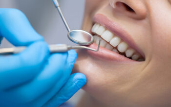 Dental implants can be extremely important to your oral health as well as other things. Read here exactly how dental implants work.